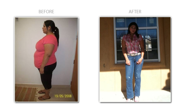Gastric Bypass Testimonial Bariatric Patients